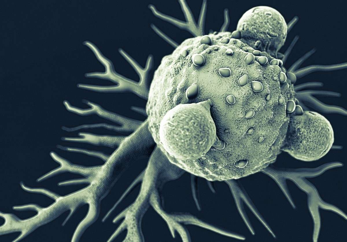T-cell and Cancer Cell